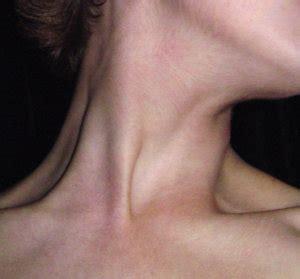 does hair bumps hurt burning lump in throat