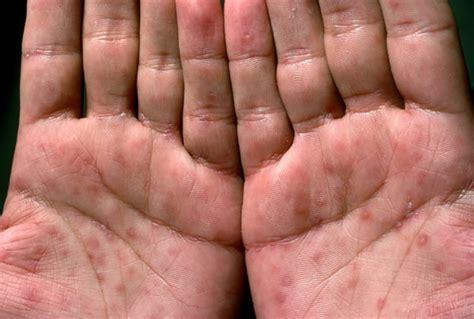 scheide innen lues syphillis causes symptoms treatment lues syphillis