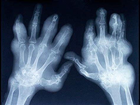 alimentazione per artrite reumatoide 22 best sintomi artrite reumatoide alimentazione artrite