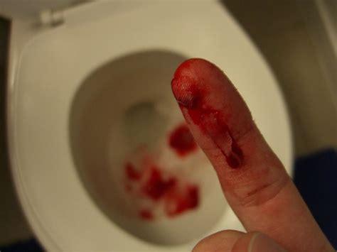 cut finger wound focus carloscappaticci flickr