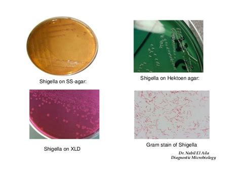 Stool Culture For Salmonella by Enterobacteriacea Ii Biochemical Reaction 2