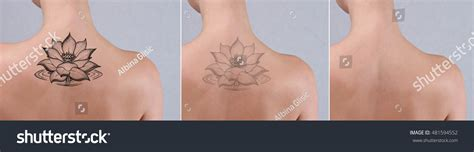 tattoo removal stock laser removal before after beautiful stock photo
