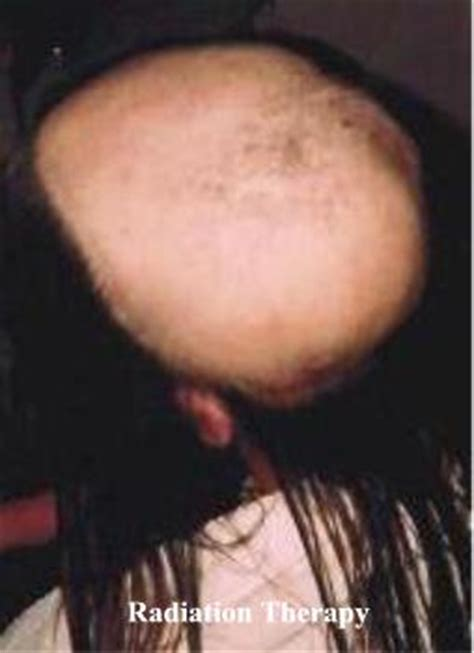 hair loss after chemotherapy shoo for hair loss shoo for hair loss due to chemo