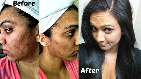 My ACNE Story   Before/After Pics (Part 1)   YouTube