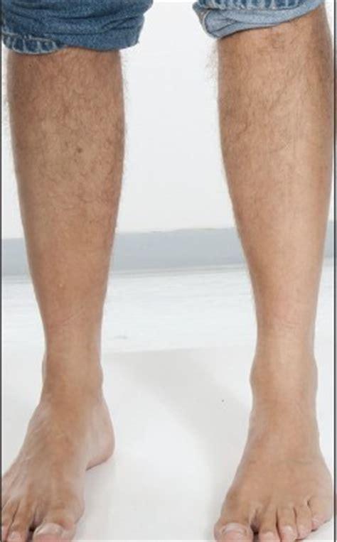 losing leg hair on men image gallery leg hair falling out