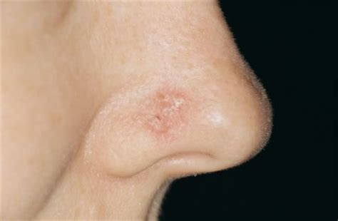 nose cancer how to detect skin cancer on nose