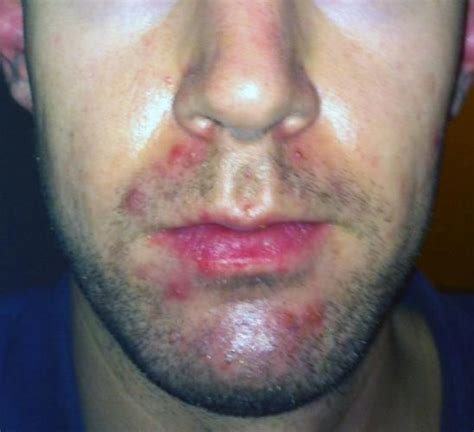 Accutane Liver Detox by 26 Year Course Accutane Isotretinoin