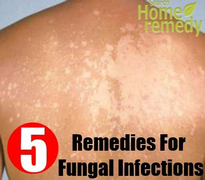 fungal skin infection fungal skin infections treatment quotes