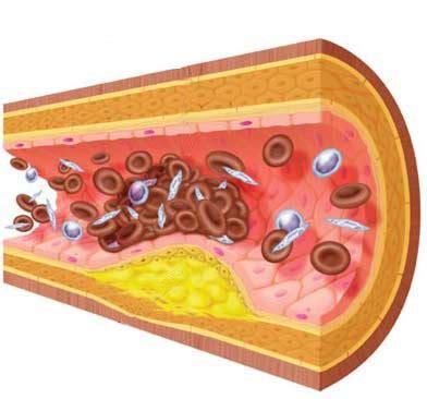 alimentos malos para el colesterol y trigliceridos alimentos buenos y malos para las grasas en sangre