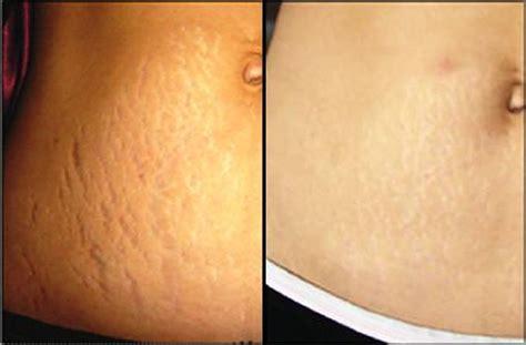 Paket Chemical Soft Peel Acne skin care tanning 25 strength tca chemical peel at