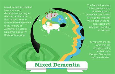 dementia symptoms dementia symptoms signs of different types of dementia resepi aiskrim