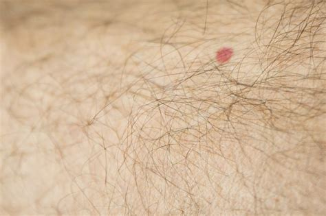 wart on leg how to get rid of a warts on your leg with pictures ehow