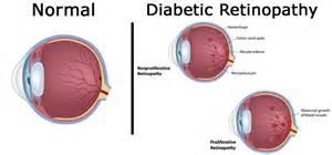 Introduction Of Blindness Rahul Gondane Author At Lenspick Blog Sunglasses