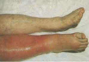 Blood clot in leg veins dvt how dangerous it is stabroek news