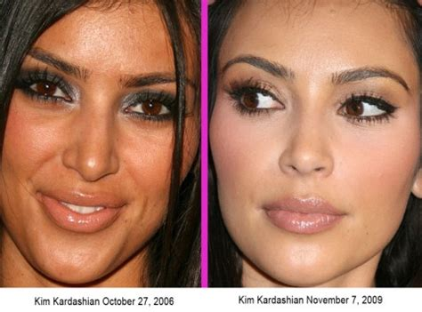 young kim kardashian before plastic surgery nose job photos