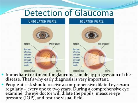 best glaucoma treatment causes symptoms and how to naturally treat glaucoma
