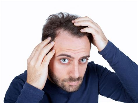 prevent and prolong balding mens health baldness thinning hair loss in men reasons causes