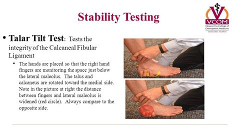 talar swing test comprehensive review lower extremity ppt video online