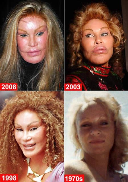 10 worst plastic surgery disasters oddee