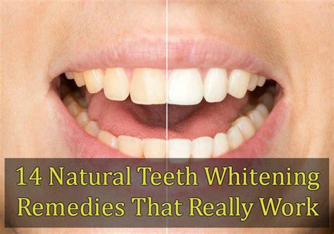 how do teething work 14 teeth whitening remedies that really work
