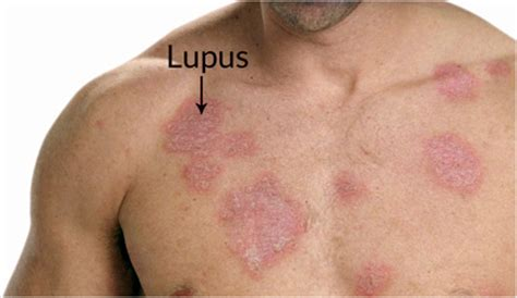 sle of use dr abhrajit sle lupus india kolkata rheumatic diseases immunology diagnosis