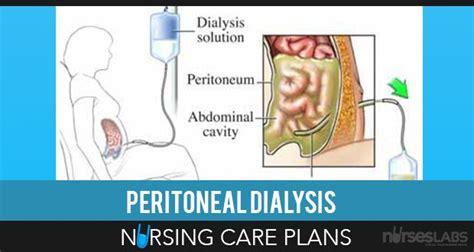 care deficit nursing diagnosis care plan nurseslabs 1000 images about care plans on pinterest