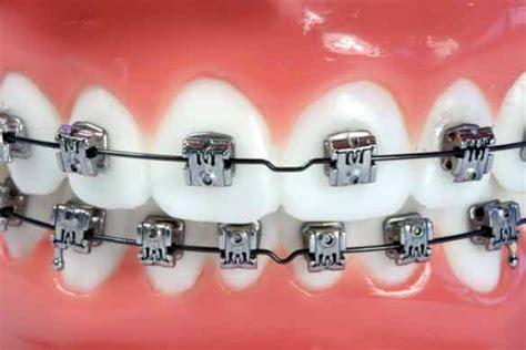 Bracket Behel Metal Sky Ortho types of braces silva orthodontics braces in lakewood