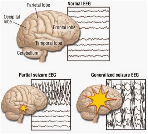 can a die from a seizure ajit vadakayil epilepsy brain seizures fits alzhiemers thc and cbd extract of