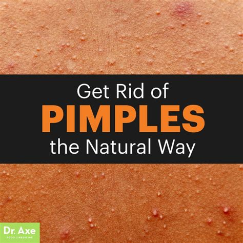 15 Top Foods To Get Rid Of Acne by Best Food To Eat Get Rid Of Pimples Foodfash Co