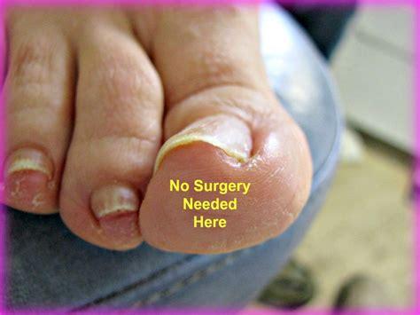 ingrown toenail treatment how to avoid ingrown toenail surgery