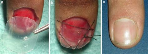 nail bed laceration fig2 surgical treatment of acute fingernail injuries open i