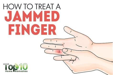 to finger how to treat a jammed finger top 10 home remedies