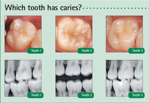 comfort dental gold plan pricing find a dentist comfort dental autos post