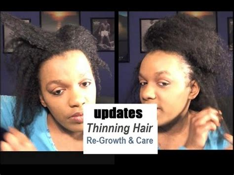 is thinning hair natural for a 60 year old woma my natural hair is growing back after the thinning tips