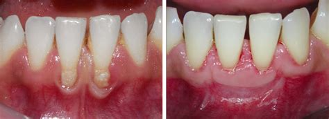 surgical esthetic correction for gingival pigmentation esthetic mucogingival periodontal surgery