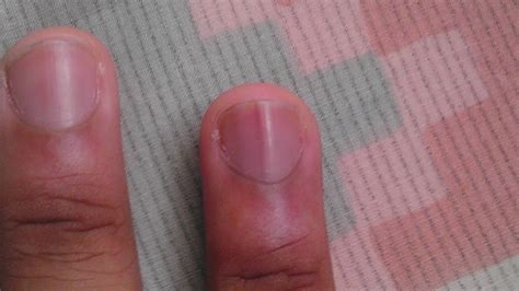 dark line on fingernail nails with vertical lines beautify themselves with sweet