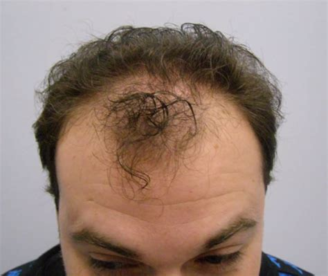 hair transplant cost in tianjin china image how much does a transplant cost download
