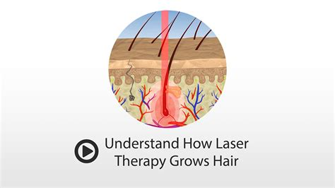 does light therapy work for hair growth how does laser hair growth work theradome grows hair