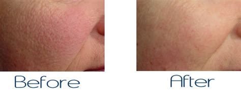 Treatment Laser Pores tips for treating large pores cosmetic dermatology