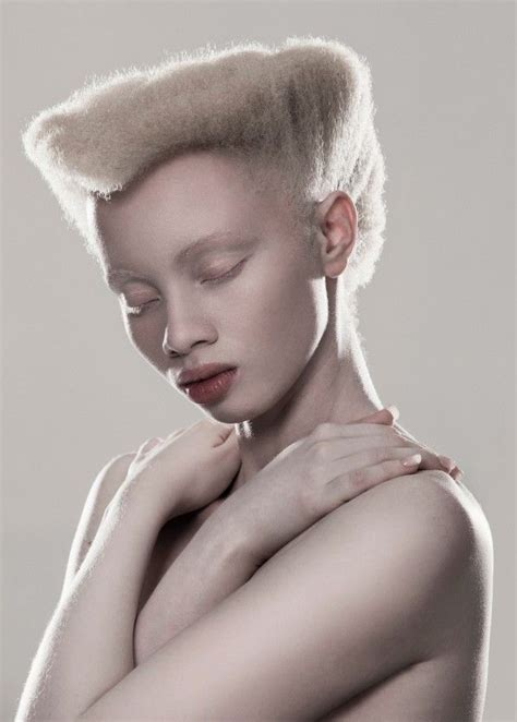albino hairy pubic hair 106 best images about albino human on pinterest tanzania