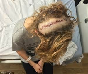 younger hair after brain surgery katie hopkins welcome to the scars i will happily wear