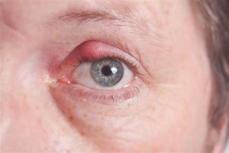 bump on s eyelid bump on eyelid causes symptoms treatment prevention diseases pictures