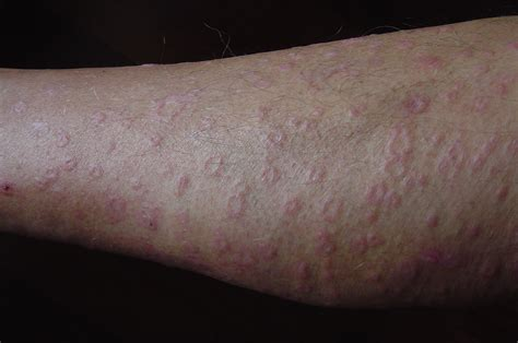 rash on rash on legs pictures breeds picture