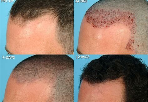 neograft in turkey how soon after a hair transplant can scabs be safely
