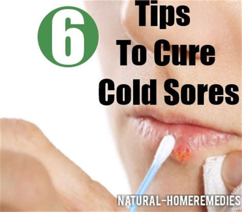 7 Remedies To Treat A Cold by 6 Cures For Cold Sores How To Heal A Cold Sore