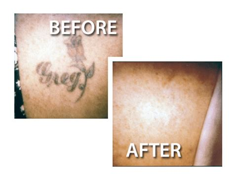 tattoo removal offers the best removal fort collins has to offer tat 2 undo