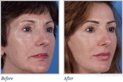laser wrinkle removal before and after skin care archives plastic surgery associates