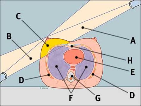 radiation cross section image radiation treatment cross sectional view