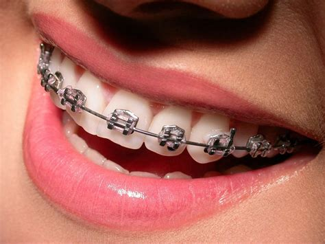 as home straighten your teeth without using braces