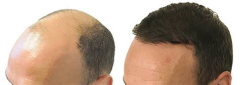 how is loop hair transplant done before and after photos men s results ziering medical